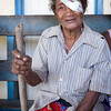 Patient who has seen the visiting eye team at Kirakira Hospital, Solomon Islands. Credit Kristian Frires, Fred Hollows
