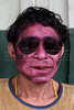 A Yanomami indigenous man show off sunglasses he received after medical treatment near a Brazilian Air Force (FAB) airstrip on the Yanomami reserve in Roraima state, Brazil. Health conditions for the Yanomami have improved ever since the beginning of relief missions by the FAB. The FAB uses its infrastructure and know-how to promote a three part policy for the remote Amazon region near the Venezuela and Guyana borders: To show a presence of state in the inaccessible area, by taking medical personnel to those areas and finally, to train pilots in during real-life relief missions in an extreme environment. The increased presence in the area is, in part, to combat drug trafficking from Colombia into Brazil through Venezuela, which has increased after borders areas with Colombia have become more secure. Some say it may also be a reaction to Venezuela's recent acquisition of Russian-made helicopters and fighter jets. (Australfoto/Douglas Engle)