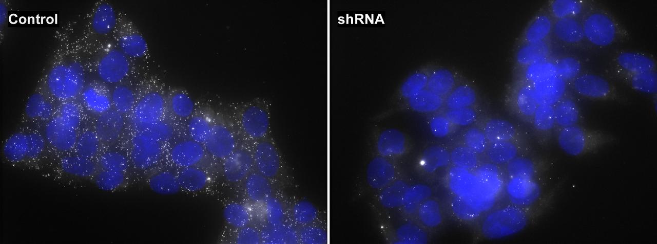 HIF1A mRNA