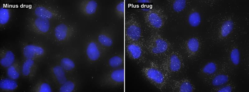 DDIT3 mRNA