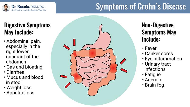 Understanding Your Options for Crohn's Disease Treatment - Symptoms%20of%20Crohn%27s%20Disease Landscape L