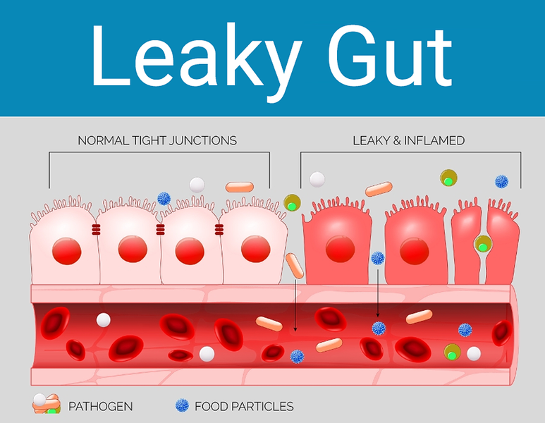 symptoms of colitis: Illustration of a normal and a leaky gut