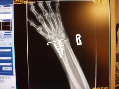 Shattered Wrist