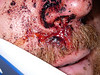 Closer view of the cut on the lip.  The doctor walked in at that point and was so appalled at my taking photos of Steve that I had to give up the investigation.