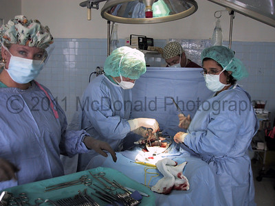 An ovarian cyst removal.