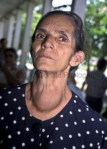 A very large goiter.  This woman had been losing weight, since she could not swall solid food.  After the surgery, she had her first meal of solid food in years.