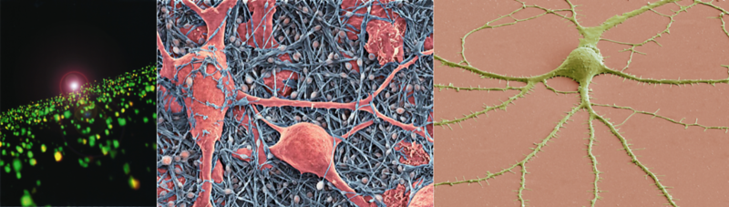 Photograph Of Memories Forming In The Human Brain (Gary Lynch, Left), Photographs Of Glial Cells And An Individual Neuron In The Brain (Thomas Deerinck, Center And Left)