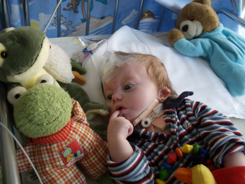 Wednesday 22nd Feb 06 - Cai is puzzled and wonders if he really only had four fingers and a thumb before the operation