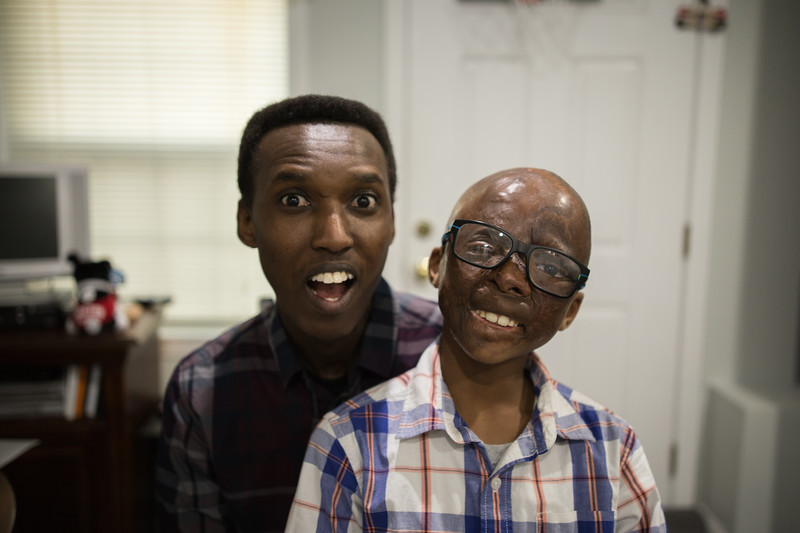 """Leo was severely burned at the age of two and now tries his best to cover with endless surgeries one after another. Alex Gitungano and Leo Ikoribitangaza's journey in the United States started in a hotel at Charlestown in 2014. """"We planned to stay here for six months, but we are still here."""" Because of the war happened at Gitungano's hometown and Leo Ikoribitangaza's surgeries, they have to stay in the United States."""