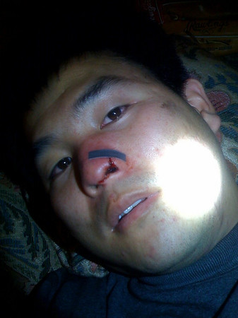 OW - Nose