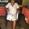 Josefa Ventura --member amputee