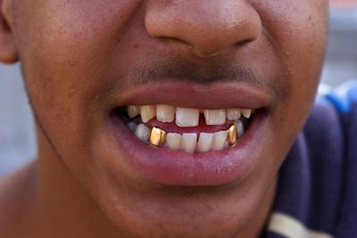 Teeth_II