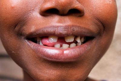 Teeth_I