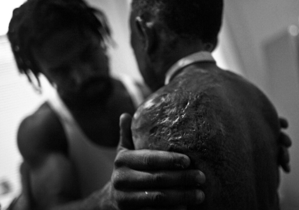 Caption: Gary Washington gently rubs lotion into Taquarius Wair's burns after giving him a sponge bath during their daily morning routine before school. Taquarius was burned in a house fire several months earlier, the same fire that killed his older sister Shawneece.