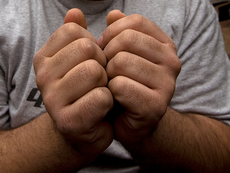 the hands of a former iraqi prisoner, showing how his hands were bound.