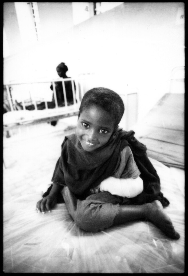 Little Somalian girl who lost hand to snake bit, in hospital near Ethiopian border, Somalia, January 1993