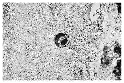 Patterns in Coral Limestone Rock II