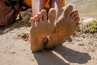 The feet of a young sadhu, Chunnilal, scarred and covered in mud as he halts at Mahaganus top, the highest point of the Amarnath yatra route on his brave feat of doing the yatra barefoot.