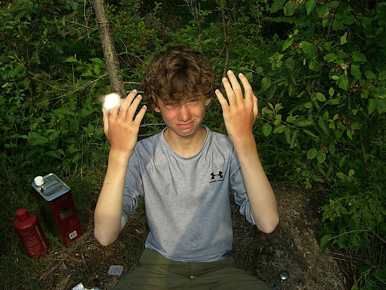 The infamous sunburned hands...
