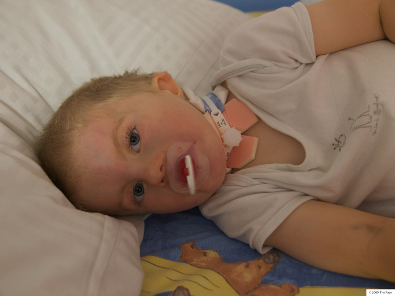 Monday 29th June 2009 - Cai has his cannula capped