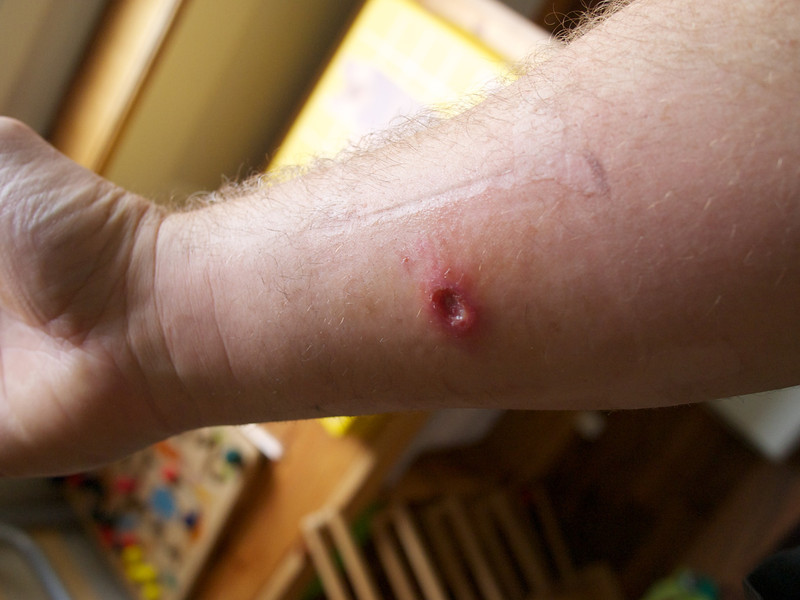 Sunday 18th Sept 2011 - This was caused by an insect bite - mosquito I think, I just don't heal so well these days.