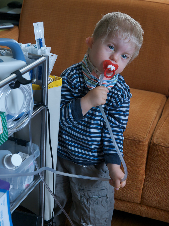 Monday 19th may 2008 - Cai is fed up that no one is looking after him now that Luc is here so decides to save time and suction his own canula.
