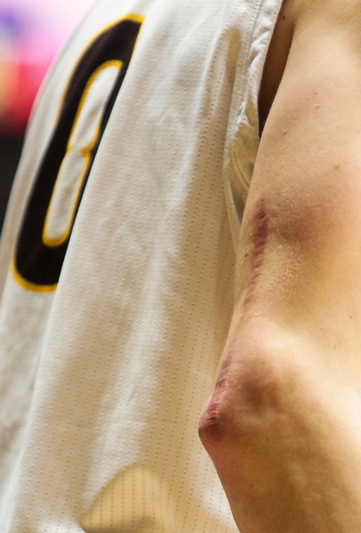 A scar stands out on the elbow of Wyoming's Jake Hendricks Wednesday, Oct. 30, 2019 at Arena-Auditorium. The Cowboys defeated the Northwest Nazarene Nighthawks 62-56 in their exhibition game. Nadav Soroker/Laramie Boomerang