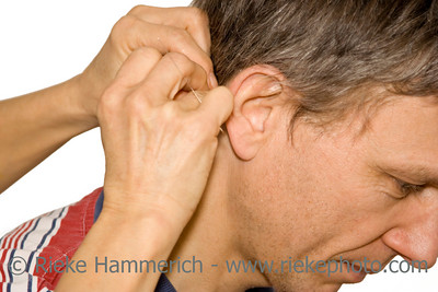 acupuncture treatment - female doctor applying acupuncture needles behind a man's ear - adobe RGB