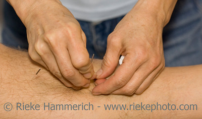 Hands applying needles to skin in acupuncture therapy - close-up - adobe RGB