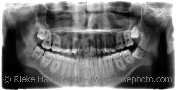 Dental X-Ray of mouth showing jaw and teeth - 32 teeth without dental filling