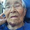 Grandma closeup - bruised chin