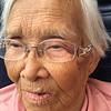Grandma closeup - bruise by eye