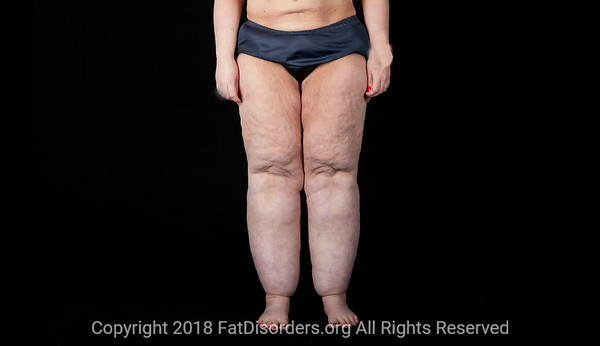 Lipedema14 #LipedemaAwareness @Fat_Disorders