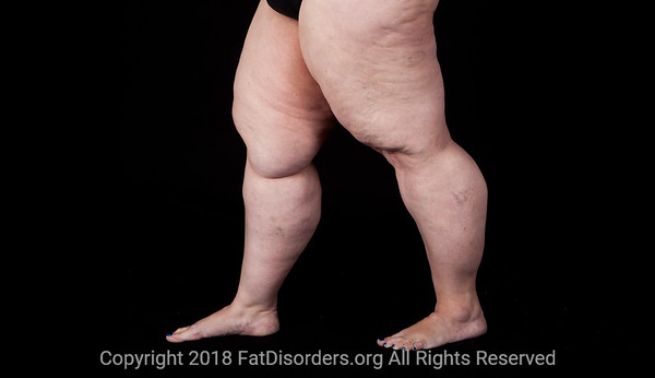Lipedema17 #LipedemaAwareness @Fat_Disorders
