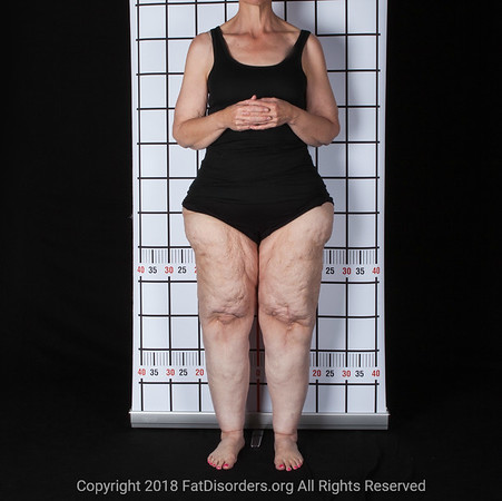 Lipedema24 #LipedemaAwareness @Fat_Disorders