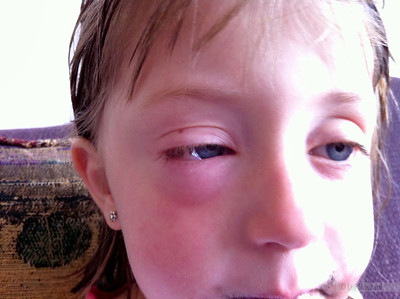 This is what terrible allergies look like!