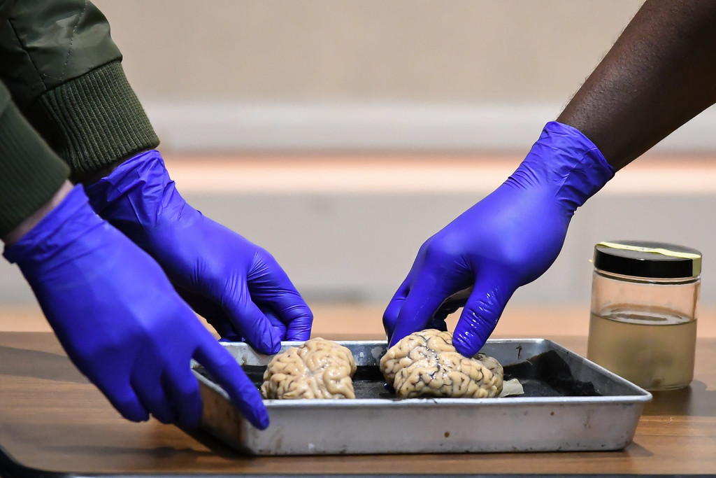 . Eric Bonzar�The Morning Journal<br> Sheep brains are put on a tray for examination during Get with the Program\'s Brain Games event, Feb. 19, 2018.