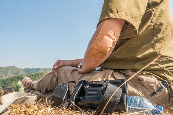 Bandaged elbow. Mount Manengouba, Littoral Region, Cameroon Africa