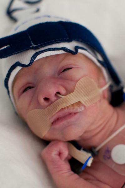 Day 17. Logan has been opening his eyes more often, although it is frequently too bright in the NICU.