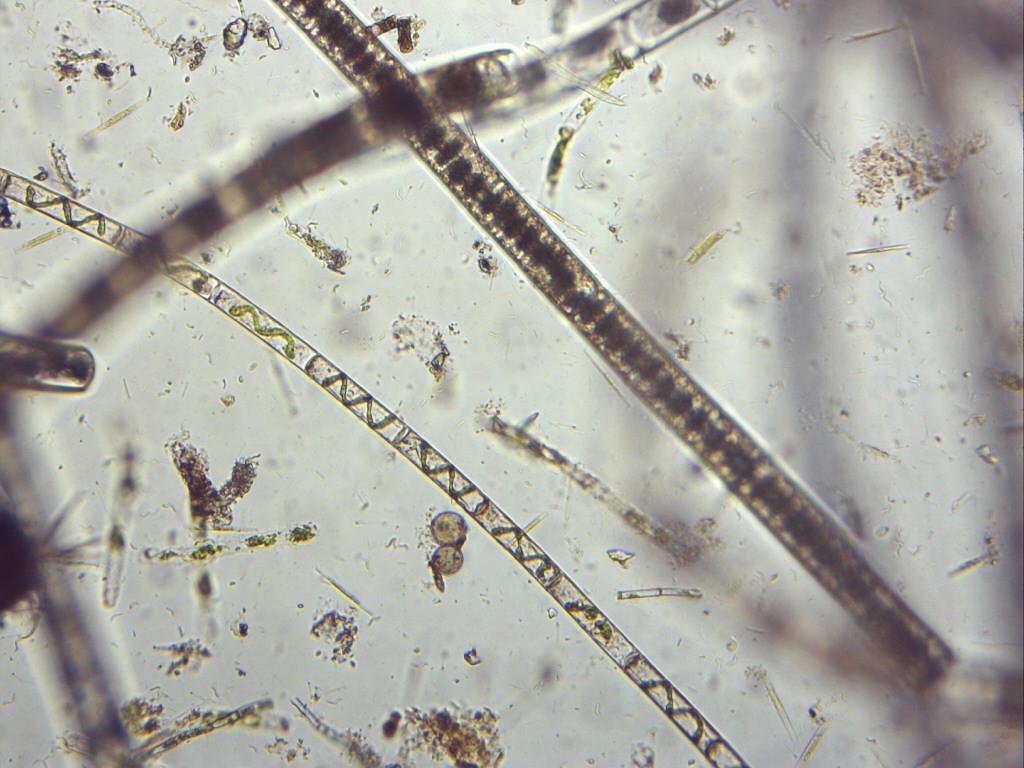 algae one is Spirogyra