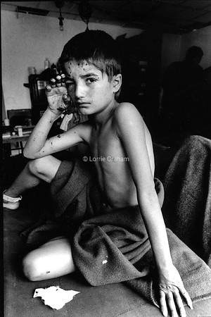 Young Kurdish boy in a Northern Iraq hospital after the war,1991