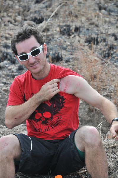 Damien Bogatech - showing race wounds