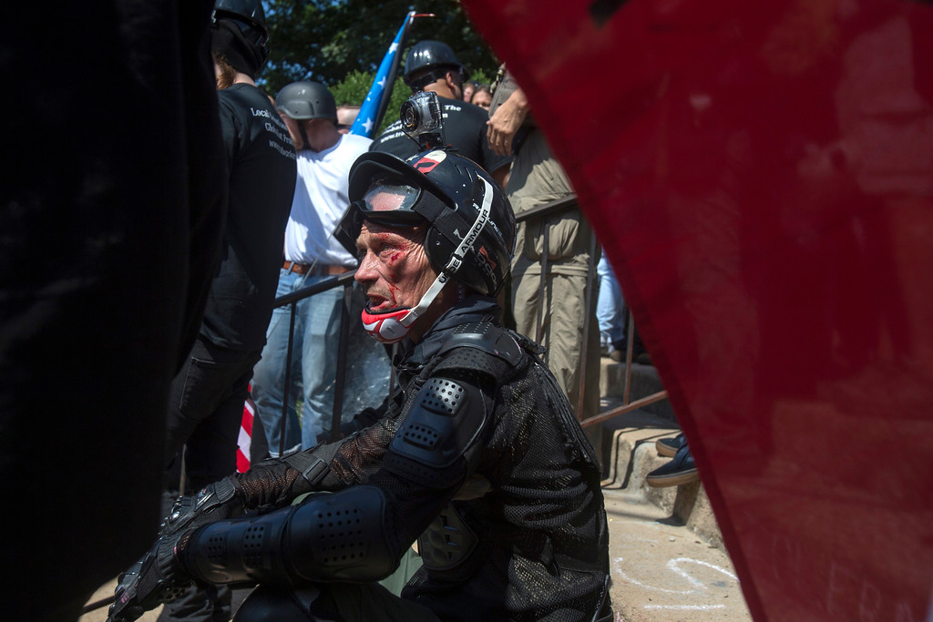 . An injured man sits on the ground during a white nationalist rally on Saturday Aug. 12, 2017, in Charlottesville, Va. The group had gathered to protest plans by the city of Charlottesville to remove a statue of Confederate Gen. Robert E. Lee. (Shaban Athuman /Richmond Times-Dispatch via AP)