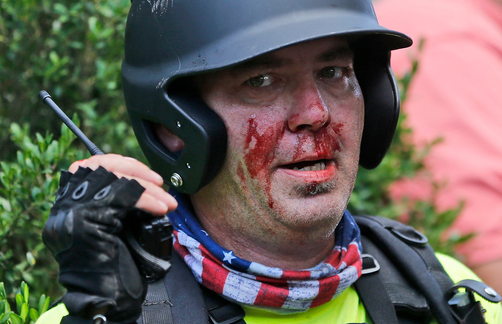 . A white nationalist demonstrator, bloodied after a clash with a counter demonstrator,  talks on the radio receiver at the entrance to Lee Park in Charlottesville, Va., Saturday, Aug. 12, 2017. Gov. Terry McAuliffe declared a state of emergency and police dressed in riot gear ordered people to disperse after chaotic violent clashes between white nationalists and counter protestors. (AP Photo/Steve Helber)