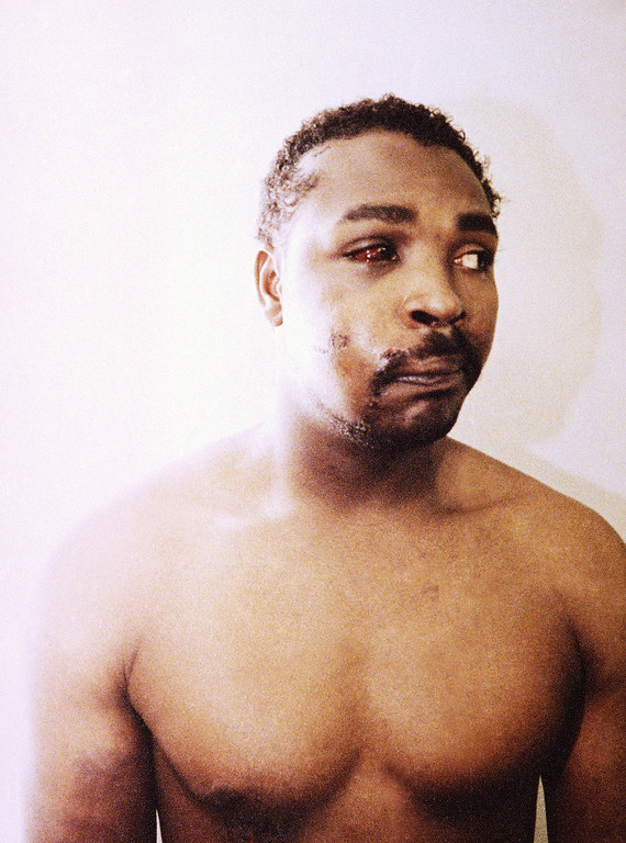 . FILE - This file photo of Rodney King was taken three days after his videotaped beating in Los Angeles on March 6, 1991. The photo is one of three introduced into evidence by the prosecution in the trial of four LAPD officers in a Simi Valley, California Courtroom, March 24, 1992.  The acquittal of four police officers in the videotaped beating of King sparked rioting that spread across the city and into neighboring suburbs. Cars were demolished and homes and businesses were burned. Before order was restored, 55 people were dead, 2,300 injured and more than 1,500 buildings were damaged or destroyed.  (AP Photo)