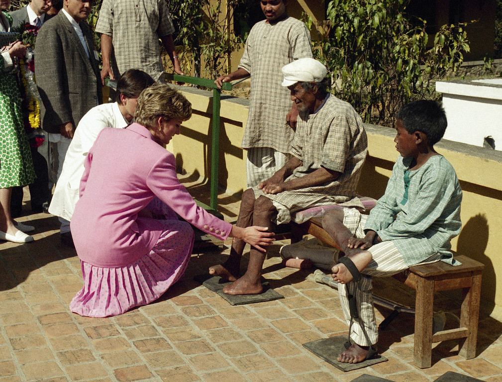 . Britain\'s Princess Diana with leprosy patient at the Anandaban Leprosy Hospital in the south of Katmandu, March 4, 1993, the third day of the princess\'s five-day visit to Nepal. (AP Photo/Binod Joshi)