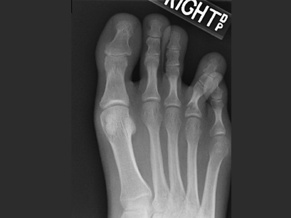 Mindy's Broken Toe