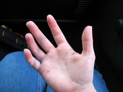 By day's end my hand was not looking much better. The lower part of my pinky got the worst of it and was swollen for days.