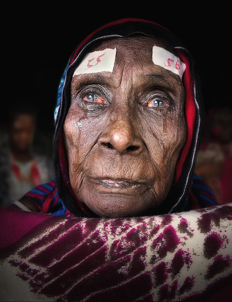 HCP cataract patient, Ethiopia
