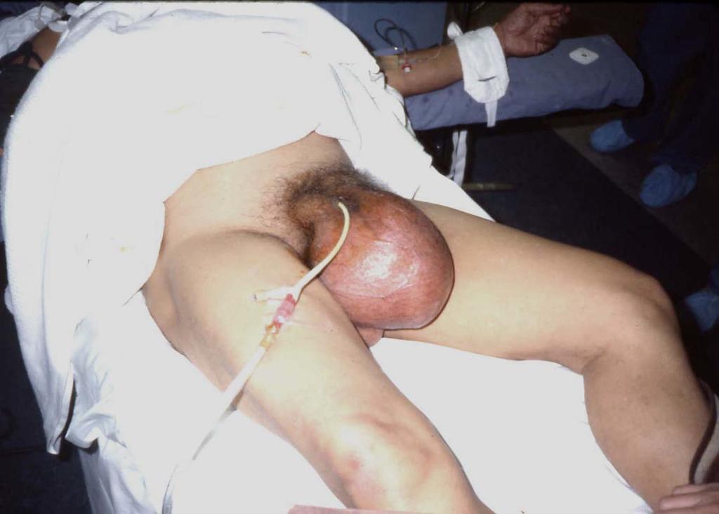 Appendix Bugswong